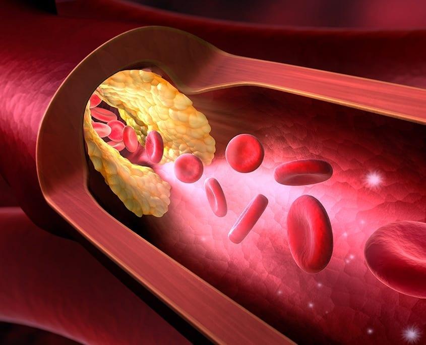 Angina Pectoris: Verstopfung der Herzkranzgefäße | Cardiopraxis - Ihre Praxis für Kardiologie in Düsseldorf und Meerbusch