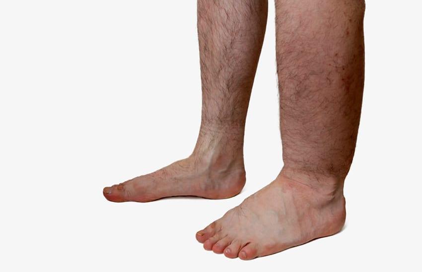 Beinödeme können lästig sein und können auf eine Herzerkrankung hinweisen. Lassen Sie Beinödeme daher unbedingt von Ihrem Kardiologen oder Venenspezialisten prüfen | Cardiopraxis - Ihre Praxis für Kardiologie in Düsseldorf und Meerbusch