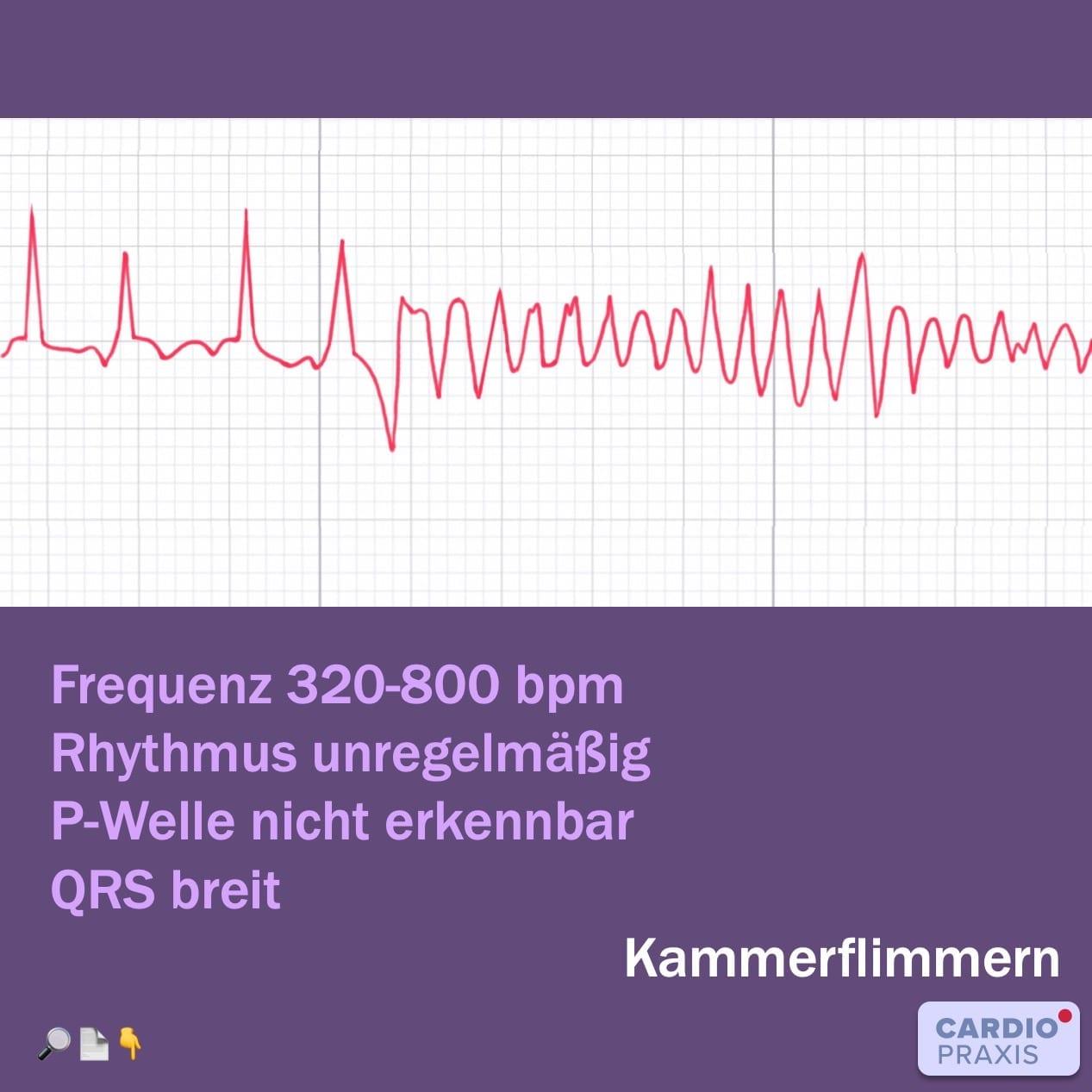Plötzlicher Herztod - Kammerflimmern im Langzeit-EKG