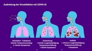 Corona Virusinfektion