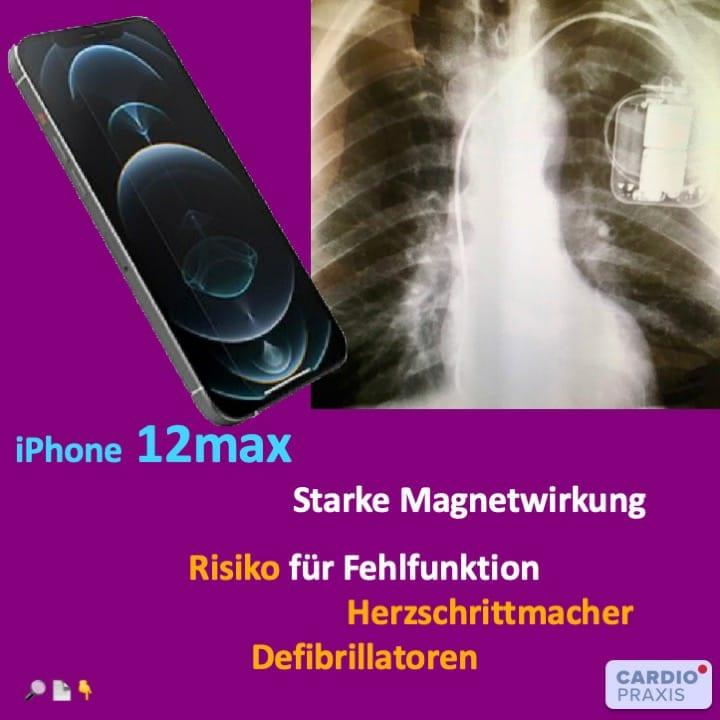 iPhone 12 - Gefahren durch Mangetstrahlung für Herzschrittmacher und Defibrillatoren: Wir klären auf!