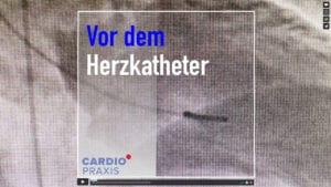 Vor der Herzkatheter-Untersuchung sollten Sie auf folgende Dinge achten | Ratgeber | Kardiologe Düsseldorf